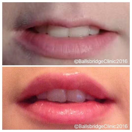 DD Cosmetic Medical Column: Lip Augmentation – Avoid the