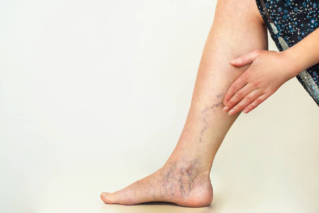 9a7fcfaff5 Medical Matters: What causes Varicose Veins and how are they treated ...